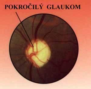 Pokročilý glaukom