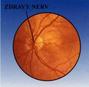 Zdravý očný nerv